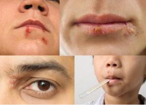 como quitar un herpes en la cara rapido