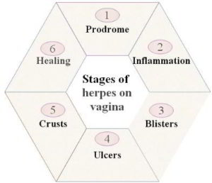 Herpes on vagina - stages