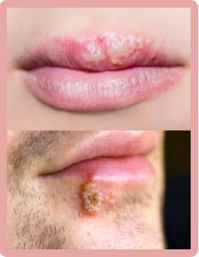 Herpes on face treatment